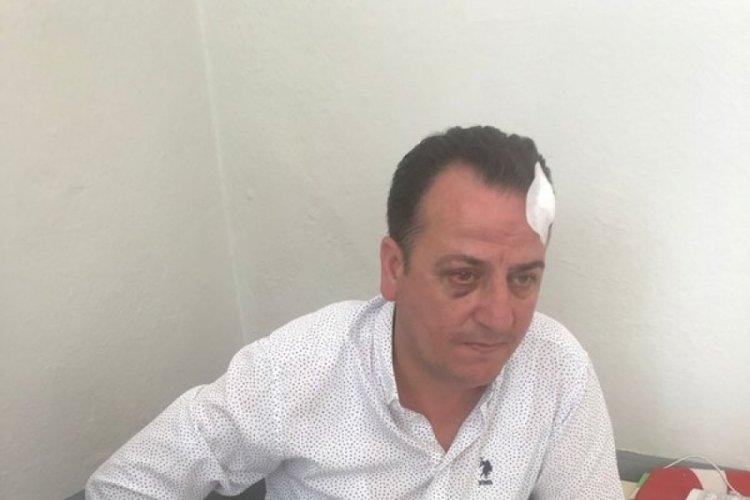 Bursa'da belediyede dövüldüm diyen şahıs suç makinesi çıktı!
