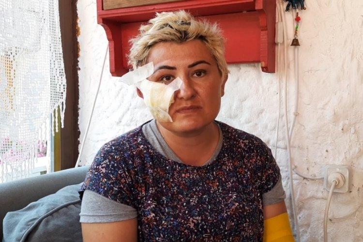 Bursa'da kazada yaralanan başhekim taburcu oldu