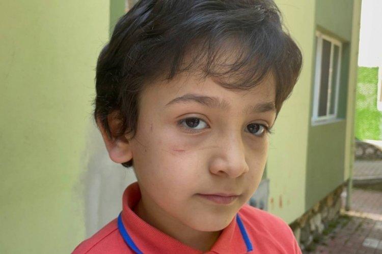 Bursa'da sokak köpeği, 8 yaşındaki Mehmet'in yanağını koparıyordu