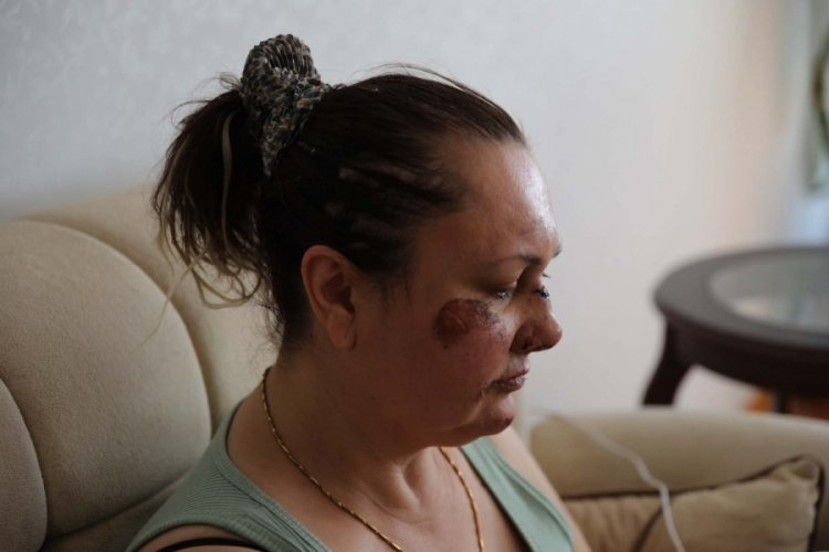 3 çocuk annesi, eski erkek arkadaşı tarafından darbedilip araçtan atıldı