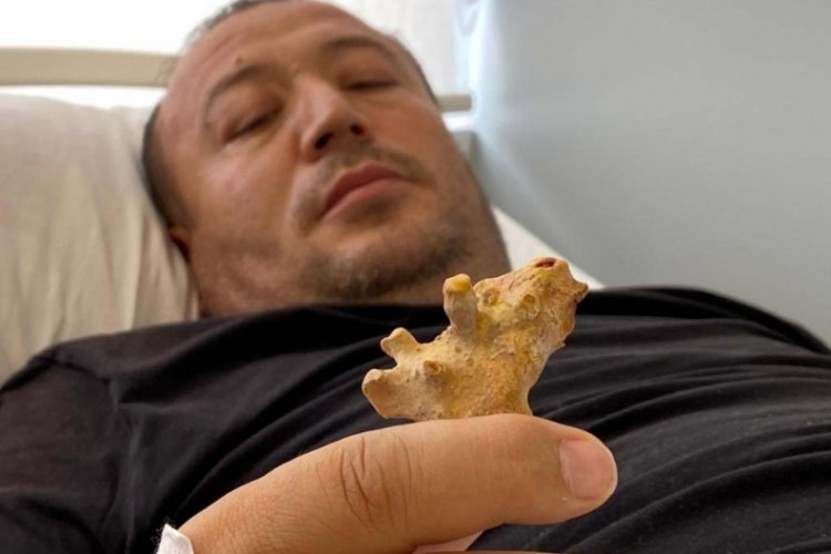Özbek hasta, Türkiye'de sağlığına kavuştu