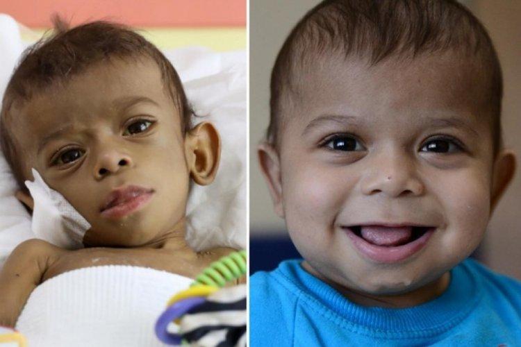 Bursa'da, Suriyeli bebek için seferber oldular!