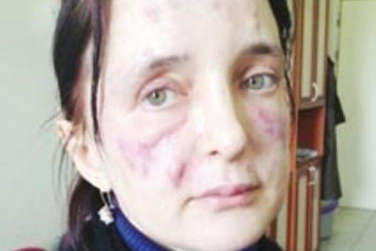 İstanbul'da sahte estetikçi skandalı 9 yıl sonra sonuçlandı