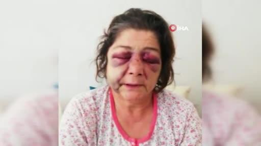 Belediye başkanının adamları tarafından dövüldü, başkan 'düşmüştür' dedi!